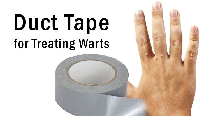 Sandpaper and duct tape to remove warts