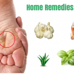 15 Effective Home Remedies for Warts that Really Work