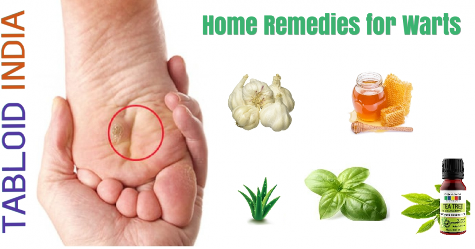 Effective Home Remedies for Warts