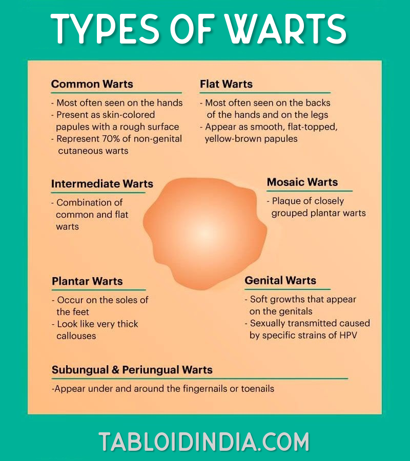 Types of warts - Infographic