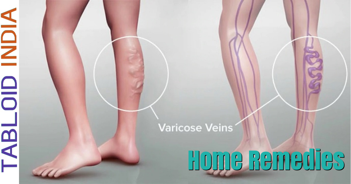 15 Best Home Remedies to Treat Varicose Veins
